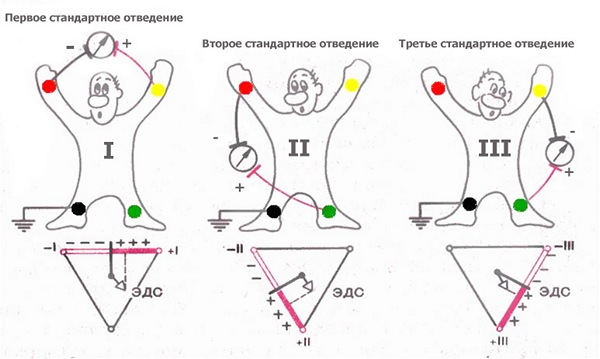 Правильная фиксация электродов